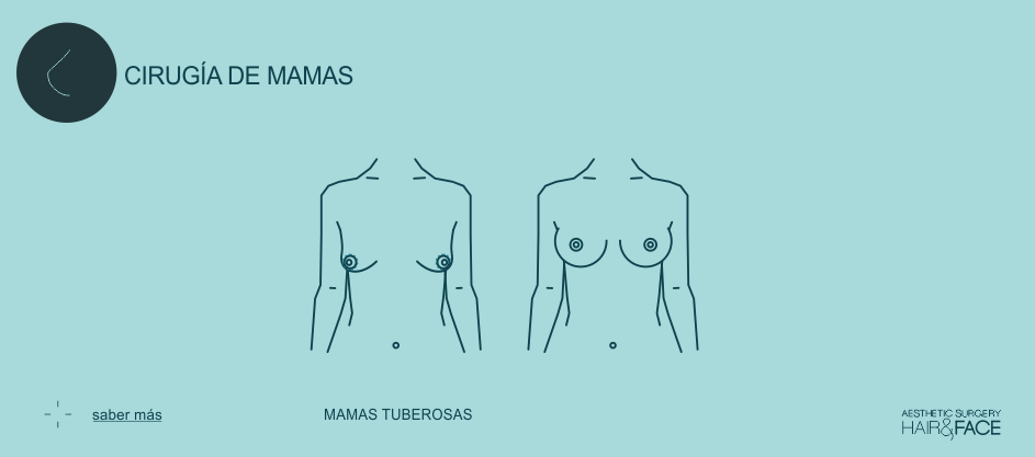 Saber más sobre mamas tuberosas...